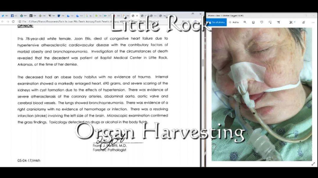 Proof Joan Ellis Was Not an Organ  or Tissue Donor and donations occurred !!.wmv